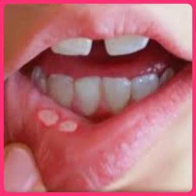 Feridinhas na boca? Pode ser estomatite!